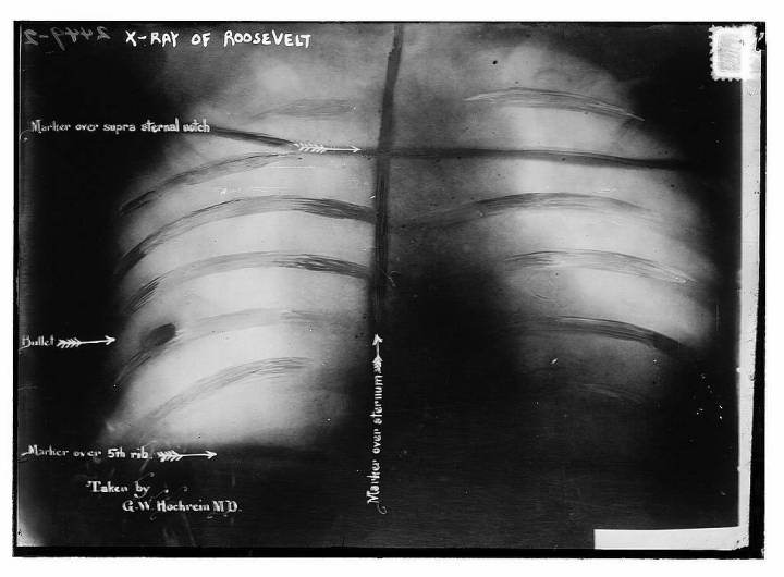 X-Ray-Teddy-Roosevelt-Bullet